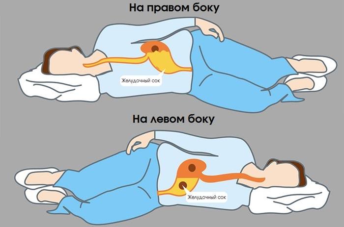 сон на правом и левом боку
