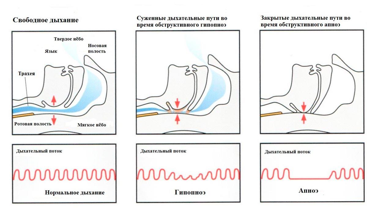 дыхание при апноэ